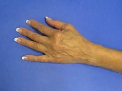 Hand Pre-op1